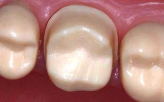 Обточка зубов под металлокерамику (обтачивание) — с уступом, больно ли