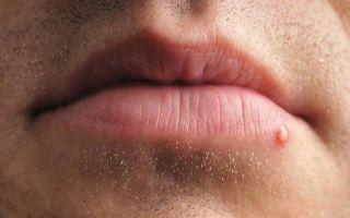Прыщ над и под губой: приметы для девушек, женщин, мужчин