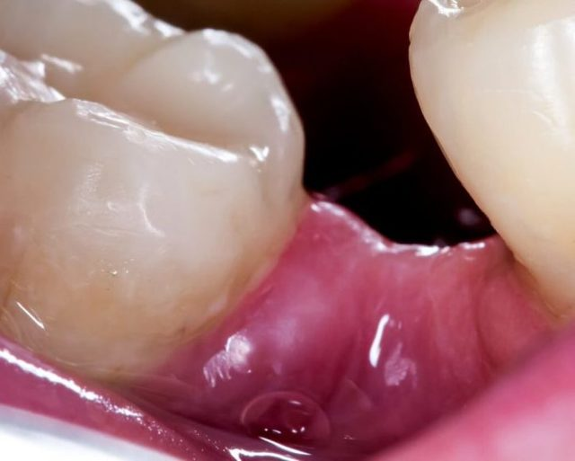 После удаления зуба мудрости болит десна: сколько заживает, что делать, чем полоскать