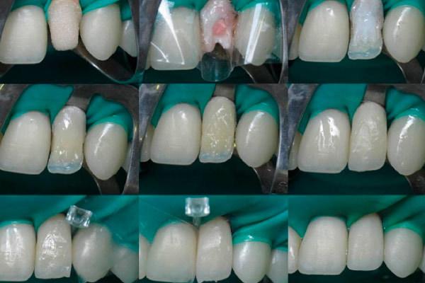 Как выровнять и выпрямить зубы у взрослых, можно ли без брекетов исправить кривые передние зубы