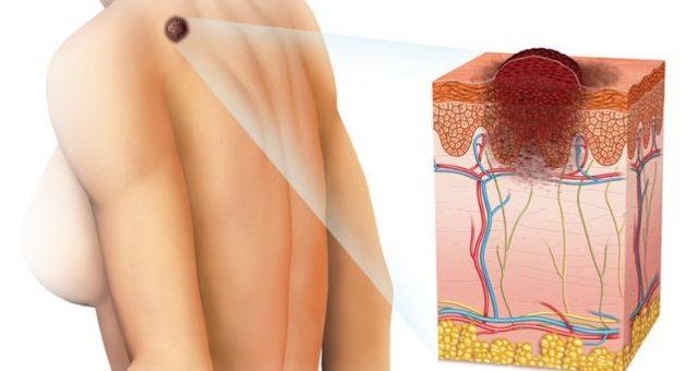 Красные пятна или сыпь на груди: это рак или нет? Как отличить обычную сыпь и другие заболевания кожи от рака молочных желез.