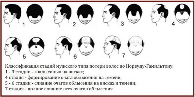20 способов бороться с выпадением волос мужчине