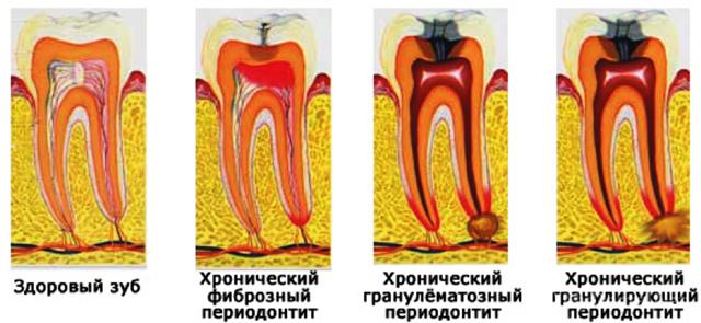 Гранулематозный и гранулирующий периодонтит: лечение, особенности, симптомы