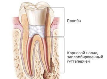 Болит десна над зубом при нажатии - причины и методы лечения