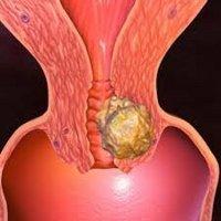 Cin 3: близко к преинвазивному раку шейки маткипарашистай