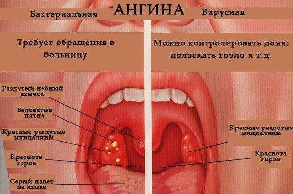 Отек горла у ребенка и взрослого - проявления, симптомы и лечение в домашних условиях