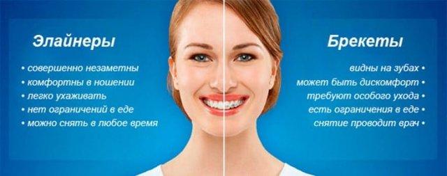 Все плюсы и минусы элайнеров star smile для коррекции дефектов прикуса