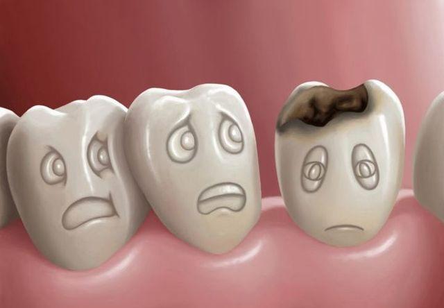 Удаление нерва зуба: каковы последствия, больно ли, что происходит после процедуры?