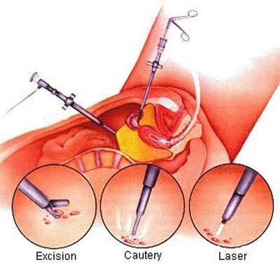 Лапароскопия (удаление эндометриоза): отзывы после операции