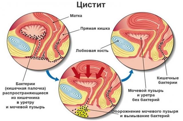 Колики внизу живота у женщин (слева и справа), причины и лечение