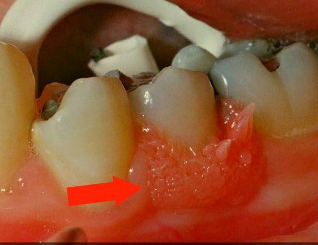 Папилломы во рту: фото на небе и слизистой, лечение и удаление в ротовой полости