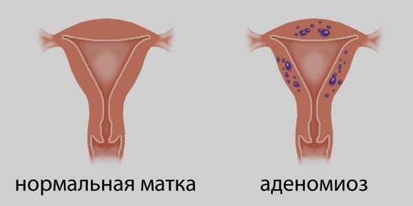 Аденомиоз матки: лечение в домашних условиях, отзывы