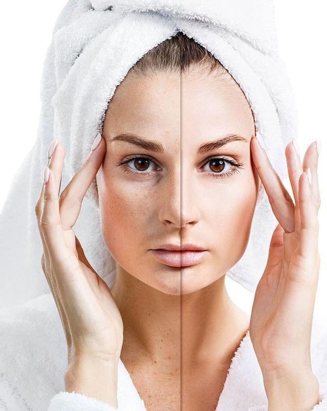 Прыщи на лице в 30 лет у женщины: причины возникновения в 35, 40, 50 лет, от чего появляются на лбу, локализация акне, лечение, как избавиться