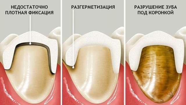 Штифт или имплант - в чем отличие, что и когда лучше выбрать