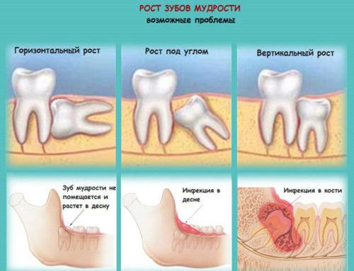 После удаления зуба болит десна: что делать с сильной болью после удаления зуба мудрости