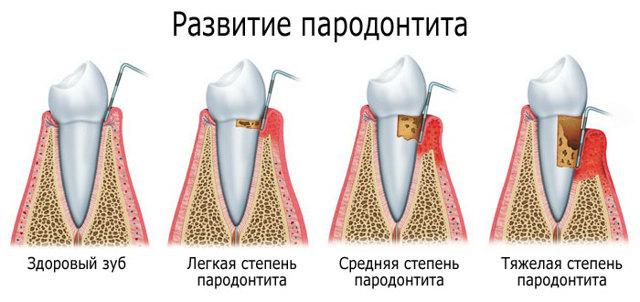 Генерализованный пародонтит: степени тяжести и причины – лечение хронического и агрессивного генерализованного пародонтита
