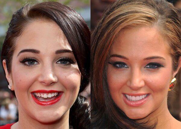 Люминиры, голливудские виниры и ультраниры, фото до и после и отзывы