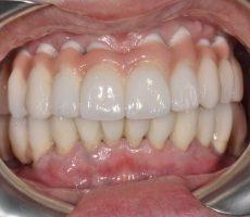 Лучшие варианты восстановления зубов после удаления. Советы специалистов по выбору метода протезирования зубов.