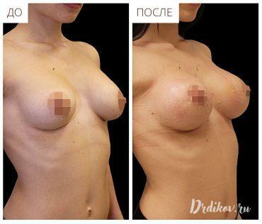 Повторная маммопластика – через сколько можно делать операцию. Реабилитация, фото, отзывы