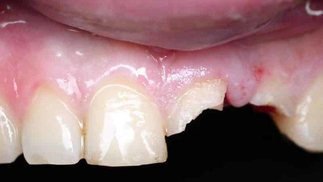 Как лечить флюс: лечение воспаления надкостницы зуба на десне, способы снять отек