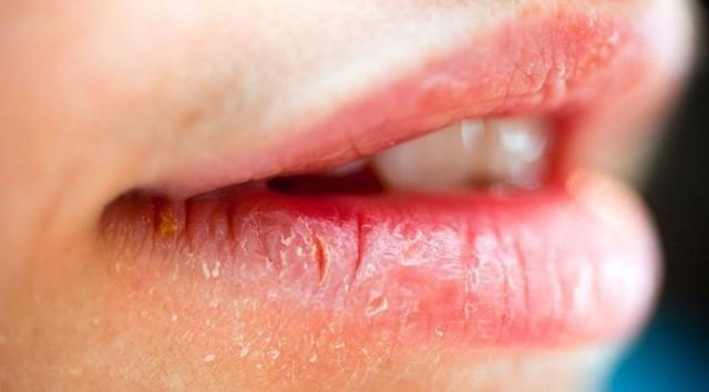 Белый налет на губах у взрослых: причины возникновения и методы лечения