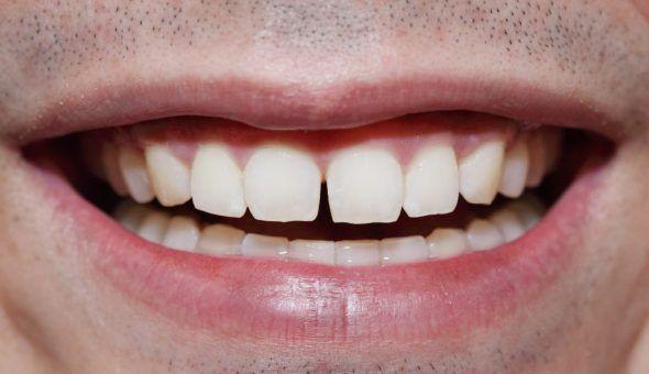 Примета - щербинка между зубами: что означает щель между передними зубами