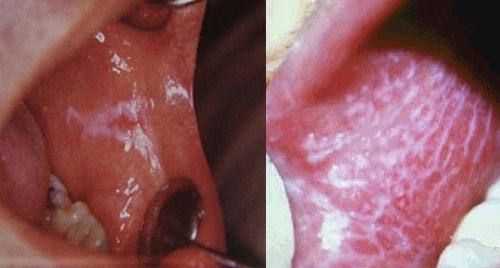 Красный плоский лишай во рту: как лечить на слизистой ротовой полости - лечение у человека