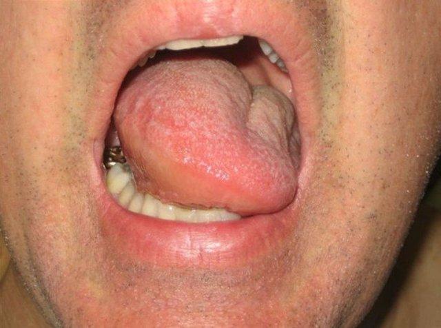 Язык увеличен: причины макроглоссии, симптомы, лечение, последствия