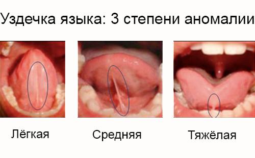 Пластика уздечки языка: показания, виды - подрезание и более сложные, процедура и реабилитация