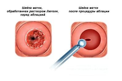Аргоноплазменная коагуляция шейки матки при планировании беременности: нужно ли делать?