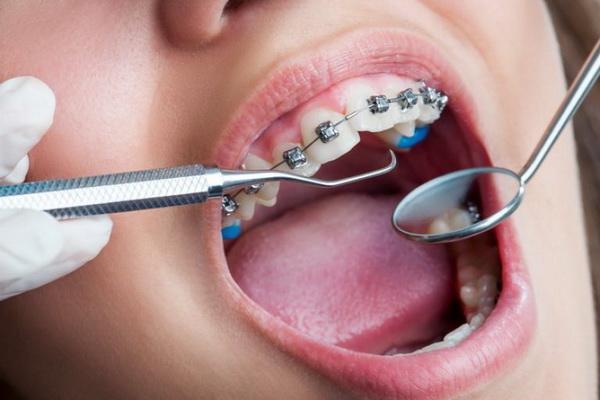 Активация брекетов: правила и советы как привыкнуть и носить, могут ли шататься зубы при ношении, ощущения от фиксации и подтяжки
