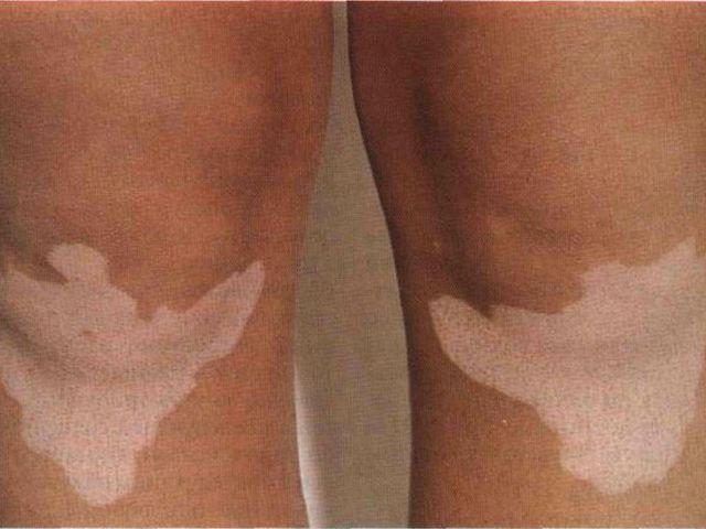Пигментация кожи - причина появления темных или белых пятен, виды болезней и лечение