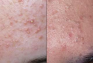 Воспаленные прыщи - на лице, подбородке, на лбу, лечение, причины, как снять, мазь, средство, маска в домашних условиях
