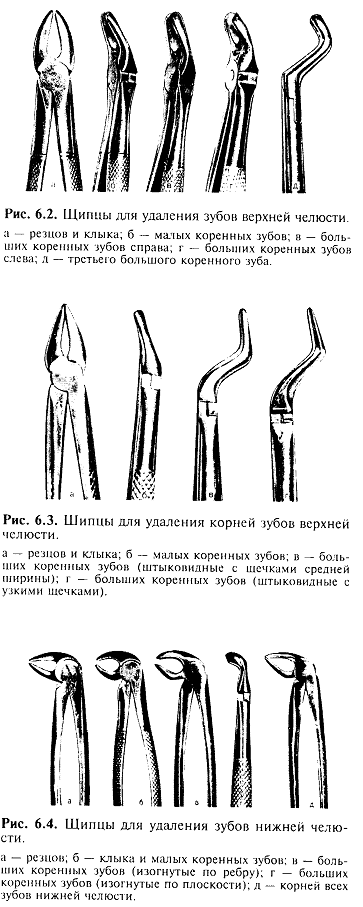 Щипцы для удаления зубов: виды инструментов для нижней и верхней челюсти, стоматологический элеватор