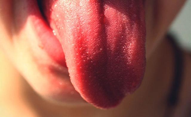 Ожог языка: причины, виды, первая помощь, последствия и лечение в домашних условиях