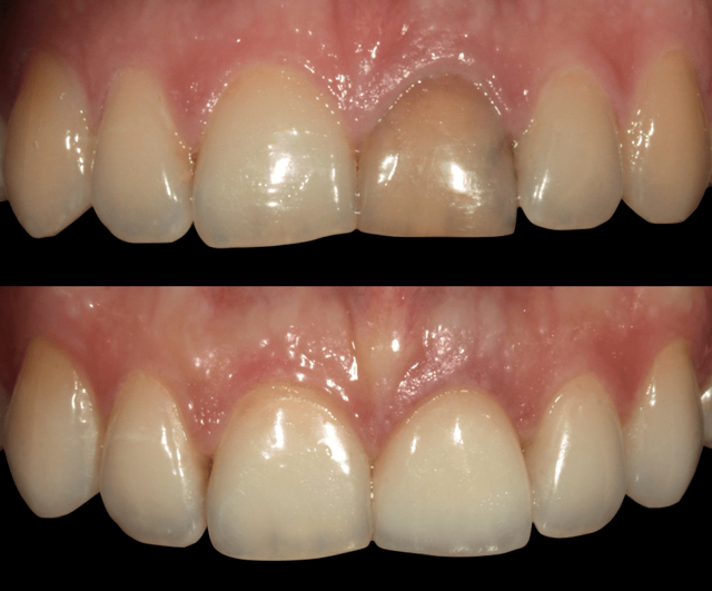 Отбеливание мертвого зуба: можно ли отбелить потемневший зуб и как правильно это сделать