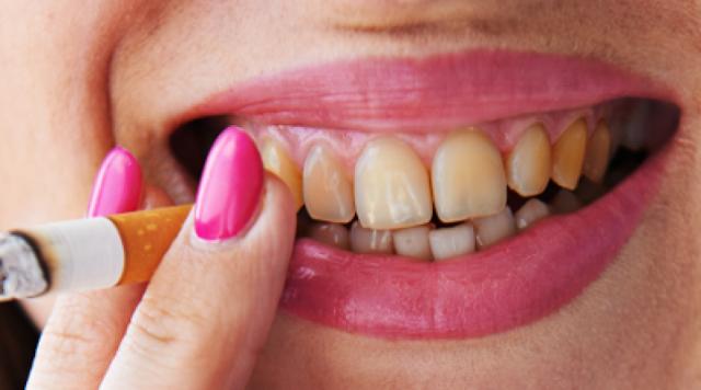 Зубы курильщика: какое влияние оказывает привычка и в каких случаях нельзя курить