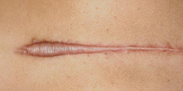 Нависание складки над швом на животе после гинекологических операций - ответы и советы на