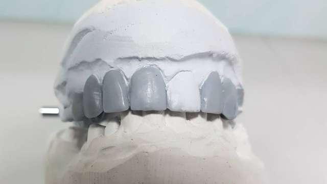 Слепок зубов для брекетов и коронок: как делают и сколько стоит