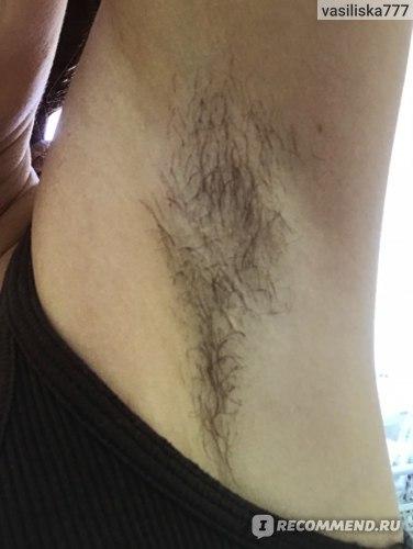 Электроэпиляция волос в зоне бикини, лица, подмышек, губ, ног: противопоказания, последствия