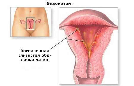 Хроническое воспаление матки: возможные причины, симптомы, проведение диагностических исследований, консультация врача и лечение