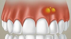 После удаления зуба шишка на десне: в лунке образовывается красная мягкая или твердая, появилась через месяц вместо зуба мудрости