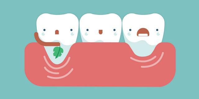 Десна отошла от зуба – что делать, если оголился зуб у десны