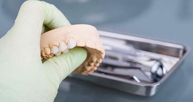 Мостовидные протезы: разновидности конструкций, показания к установке