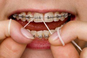 Как правильно пользоваться зубной нитью: советы, видео и фото, что делать, если флосс застрял