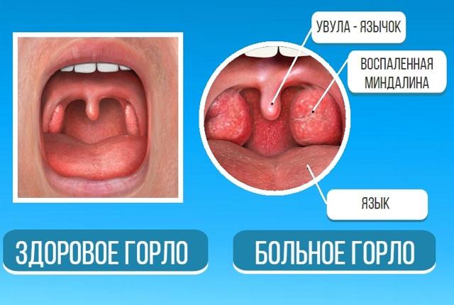 Опух язычок в горле: маленький язычок в горле увеличился что делать