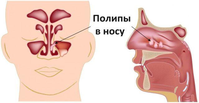 Диклофенак при воспалении придатков: как колоть уколы, ставить свечи в гинекологии при воспалении яичников, аднексите