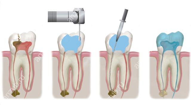 Что нужно делать, если болит зуб под коронкой – четыре причины и одно решение