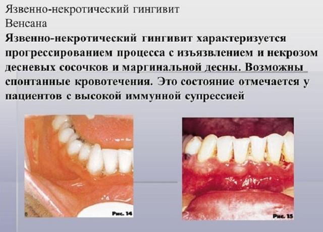 Налет на языке при вич: его особенности у инфицированных, фото, диагностика и устранение