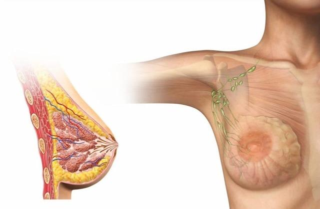 Что такое фиброзные тяжи в молочной железе. Признаки и опасность фиброза молочной железы
